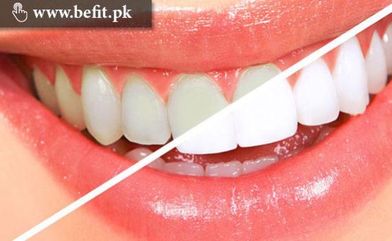 سفید دانت