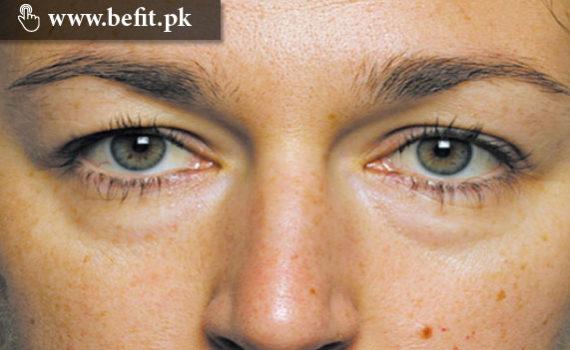 eyes swelling