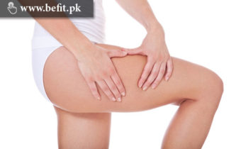 Cellulite دور کرنے کے لئے