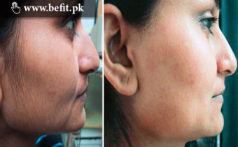 Remove Unwanted Hair from Face Permanently
