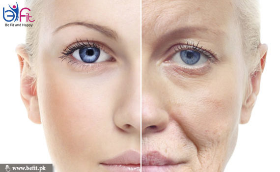get wrinkle free skin naturally