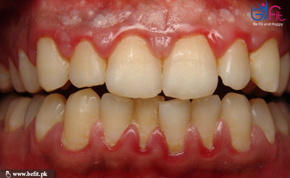 gums swelling